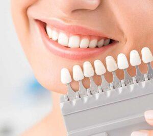 Dental Veneers Houston, TX | Porcelain Veneers Near Me | Laminates